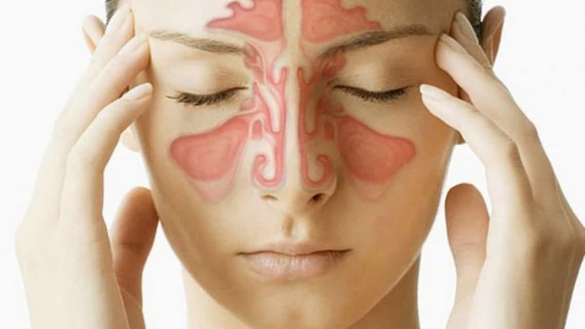 Đông y Gia truyền Lợi An - Thuốc đặc trị viêm xoang