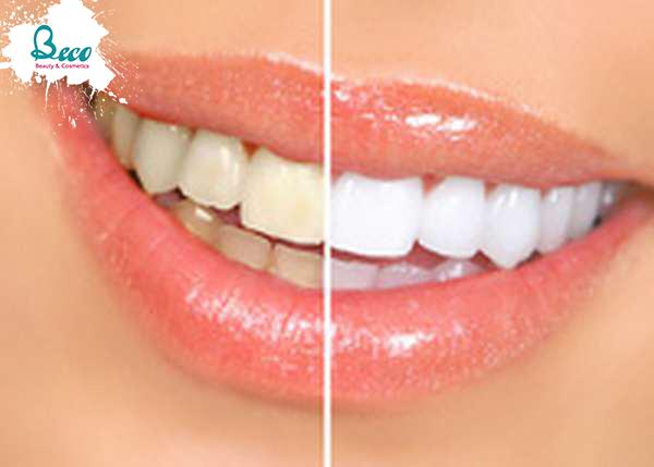Gel Làm Trắng Răng Dr.Haiian 7 Days Miracle Tooth Whitening