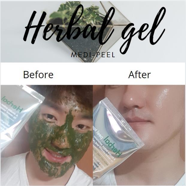 Mặt Nạ Thảo Dược Medipeel Herbal Peel Tox