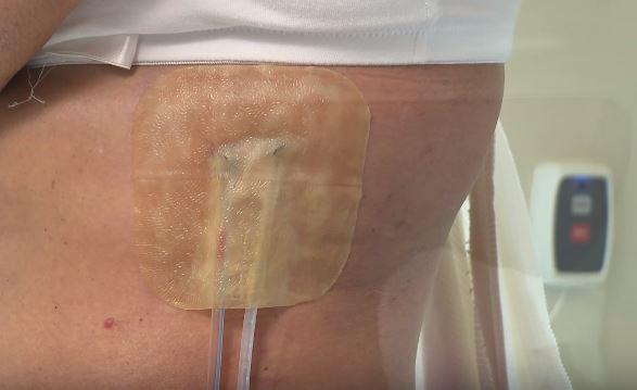 Miếng dán mụn Duoderm Extrathin 10x10 chính hãng ConvaTec dán mụn, liền sẹo chống thâm, chống nhiễm khuẩn...